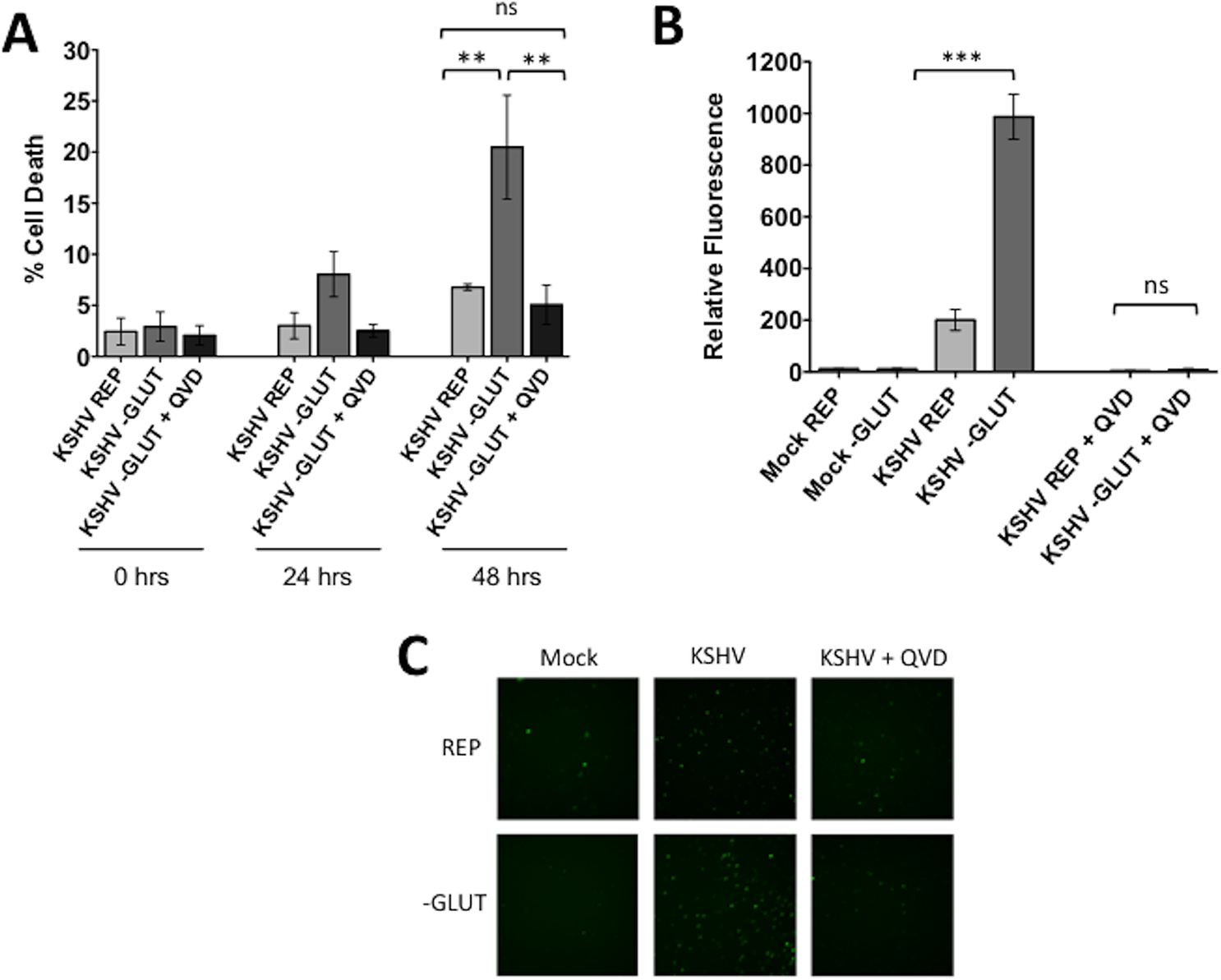 Glutamine starvation leads to apoptosis of KSHV-infected endothelial cells.