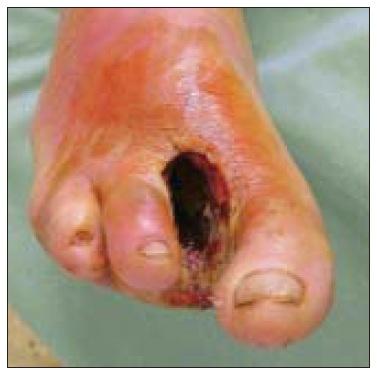 Obr. 8a. 58letý pacient po amputaci 2. a 3. prstce, progredující septickou artritidou a hlubokou kavitou v plantárním prostoru.