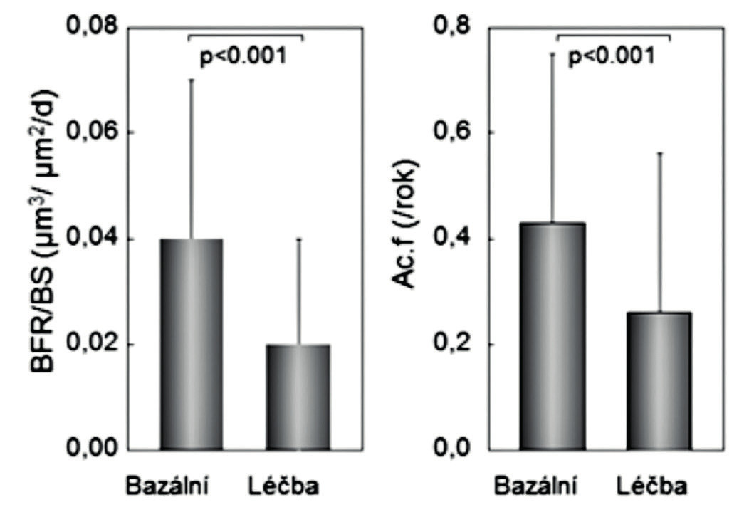 Rychlost novotvorby (vlevo) a aktivační frekvence (vpravo) v párových biopsiích u 89 žen před léčbou a po roce léčby stroncium ranelátem. Podle (15).