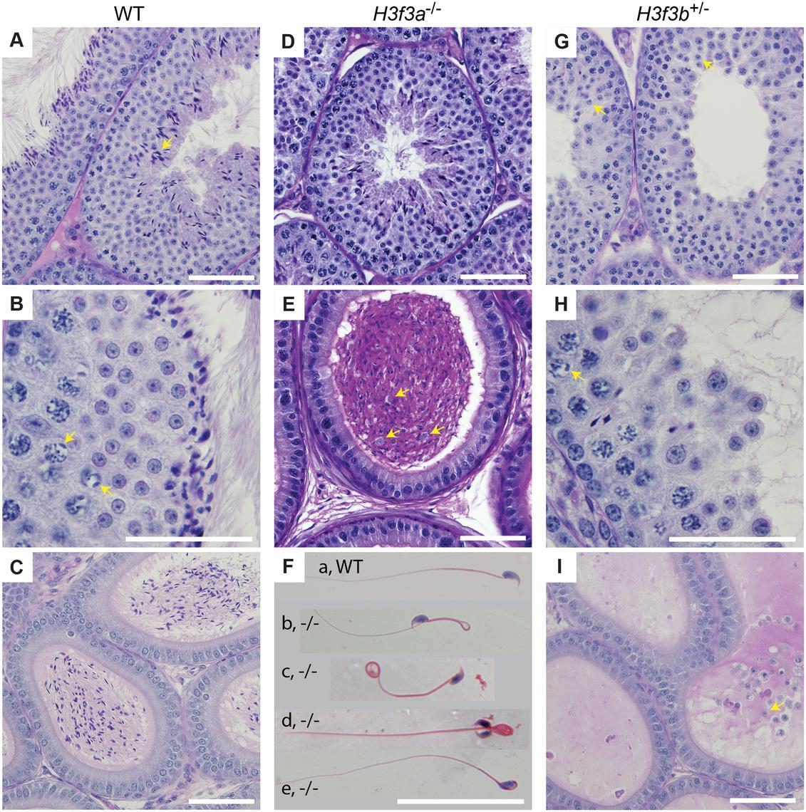 Testis and sperm morphology.