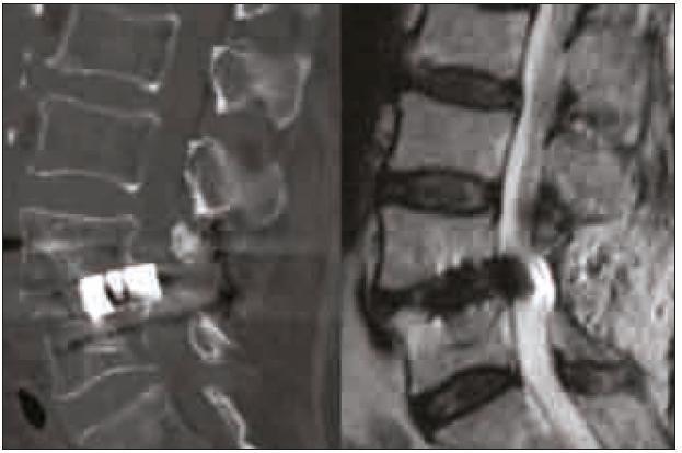 CT rekonstrukce v sagitální rovině a MR T2 vážený obraz v sagitální rovině PLIF klece prominující do páteřního kanálu. Operace nebyla provedena na pracovištích autorů.