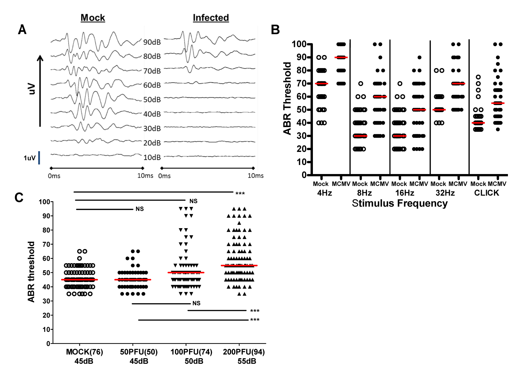 Auditory brainstem evoked response (ABR) testing in infected mice.