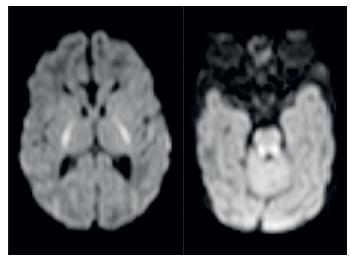 MR patologicky zvýšený signál symetricky v pontu a v oblasti horních a středních mozečkových pedunkulů. Fig. 4. MRI pathologically high signal in pontus and midle pedunculus cerebellaris.