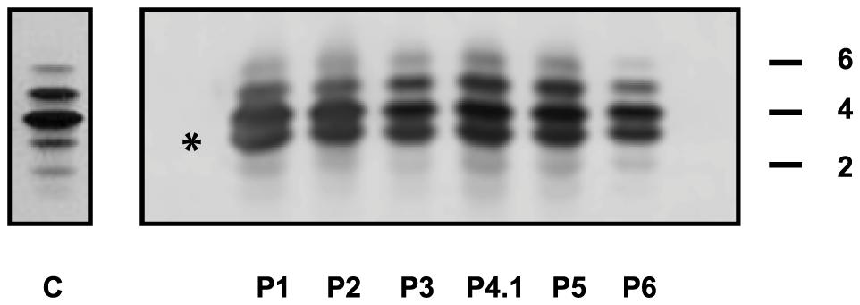 IEF profiles of serum transferrin.