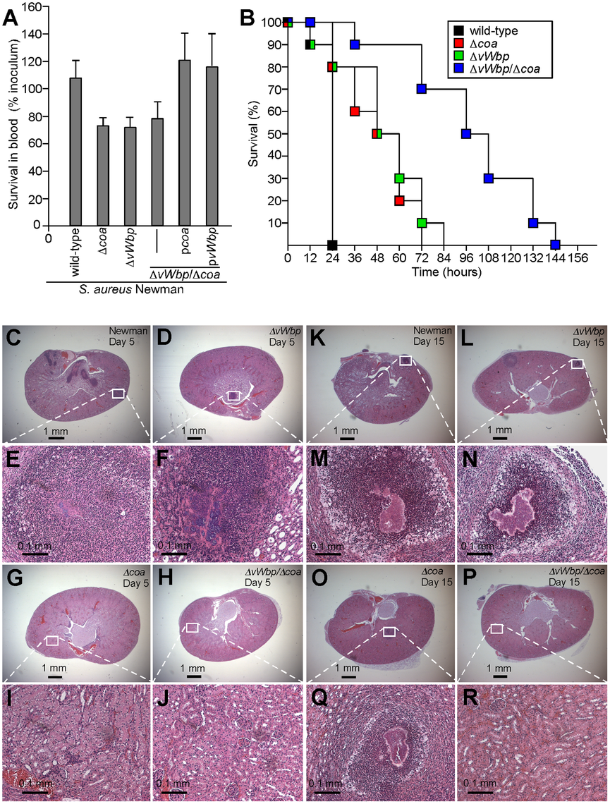 Contributions of <i>coa</i> and <i>vWbp</i> to bacterial survival in blood and <i>S. aureus</i> induced lethal bacteremia or renal abscess formation in mice.