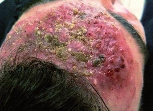 Detail nálezu na počátku léčby
