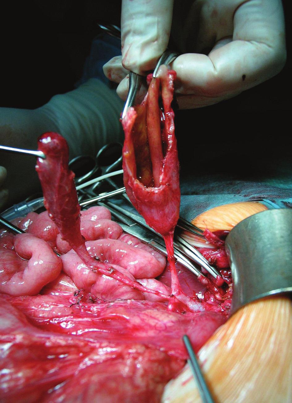 Otvorený lúmen multicysty vpravo, vľavo žlčník s vlastným ústím do choledochu Fig. 3. Multicyst with opened lumen on the right side, on the left is gall-bladder with own choledochal junction