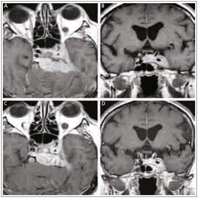 Obr. 1. MR skeny 53-ročného muža s intra- a parasellárnym meningeómom. a) Axiálny rez v T1 vážení po aplikácii Gd pred liečbou LGN. b) Koronárny rez v T1 vážení po aplikácii Gd pred liečbou. c) Axiálny rez v T1 vážení po aplikácii Gd 10 rokov po liečbe. Známky zmenšenia tumoru so zmenšením tlaku na mozgový kmeň a ľavý spánkový lalok. d) Koronárny rez v T1 vážení po aplikácii Gd 10 rokov po liečbe. Zmenšenie tumoru s oddialením okrajov meningeómu od chiazmy. Klinicky úprava trigeminálnych symptómov.