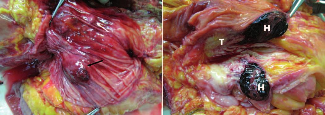 Pitevný nález. Vľavo: pohľad na sliznicu duodena, hematóm a miesto krvácania označené čiernou šípkou, Vaterská papila označená bielou šípkou. Vpravo: pohľad na reze – hematóm v stene duodena (H) a tumor hlavy pankresu (T). Fig. 4. Autopsy findings. Left: a view of the duodenal mucosa, hematoma and bleeding site identified by a black arrow, Vater papilla marked with a white arrow. Right: cross-sectional view of a hematoma in the wall of the duodenum (H) and tumor of pancreas head (T).