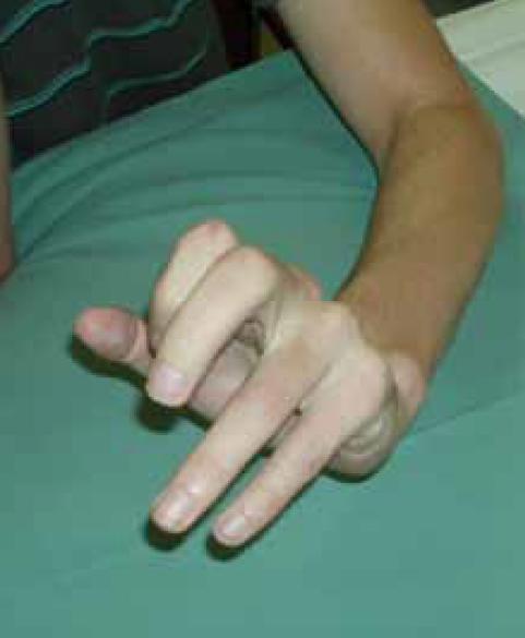 Obr. 11. Dvaadvacetiletý muž, devět měsíců po krvácení z arteriovenózní malformace s hematomem v pravém frontálním laloku. Spasticita levé ruky s flexí 1.–3. prst a extenzí 4.–5. prstu, s extenzí v zápěstí.
