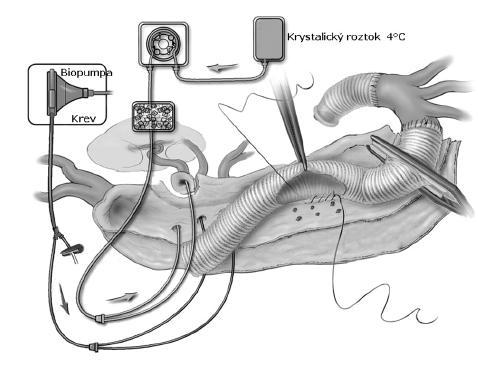 Obr. 3A. Schéma reimplantace interkostálních tepen a selektivní perfuze viscerálních tepen Fig. 3A. A schematic diagram of intercostal arteries reimplantation and selective perfusion of visceral arteries