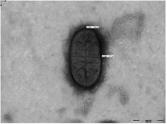 EHEC v elektronovém mikroskopu (Foto: RNDr. Lenka Šípková, SZÚ-CEM)