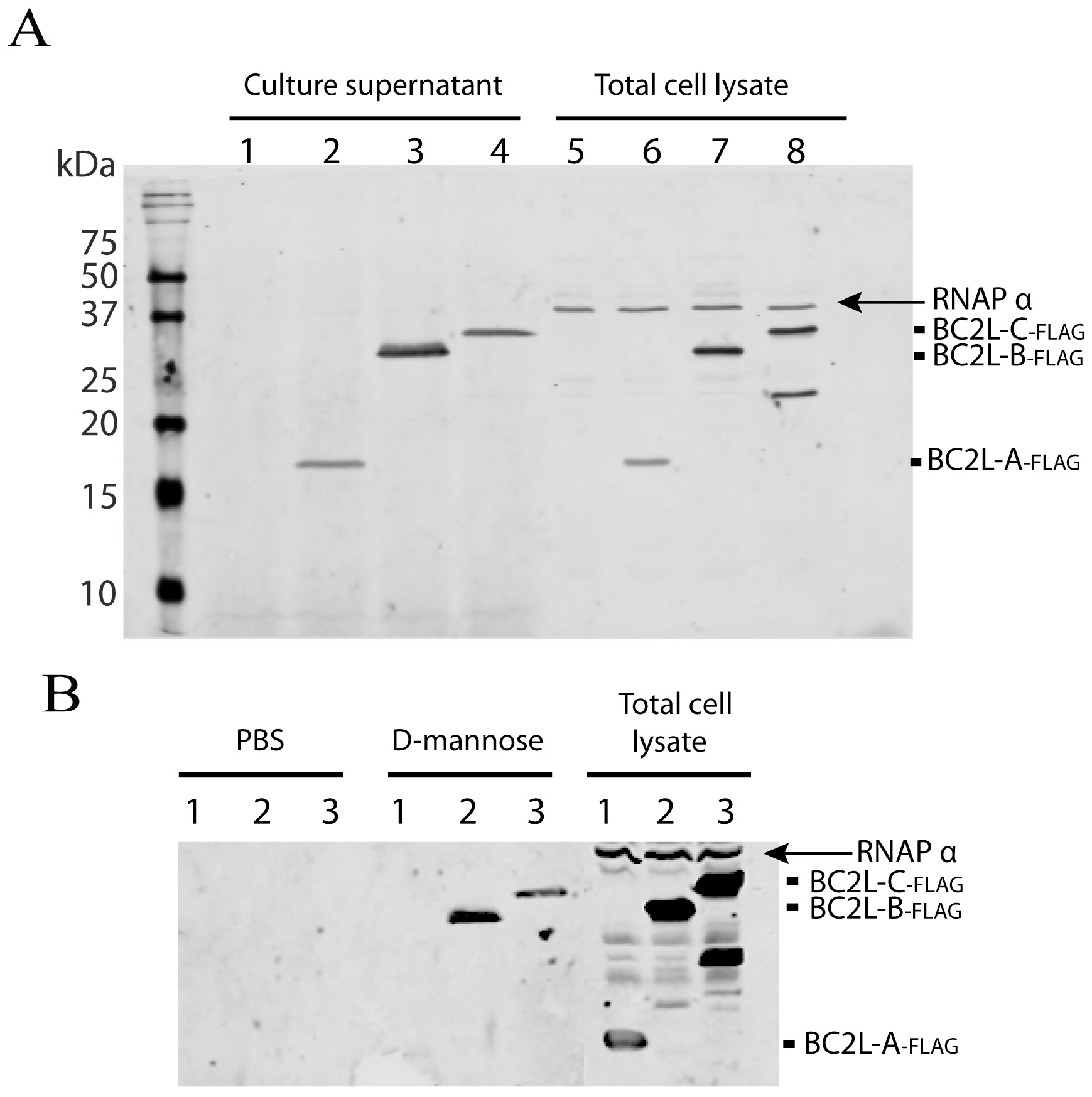 Localisation of <i>B. cenocepacia</i> soluble lectins in bacterial cells.
