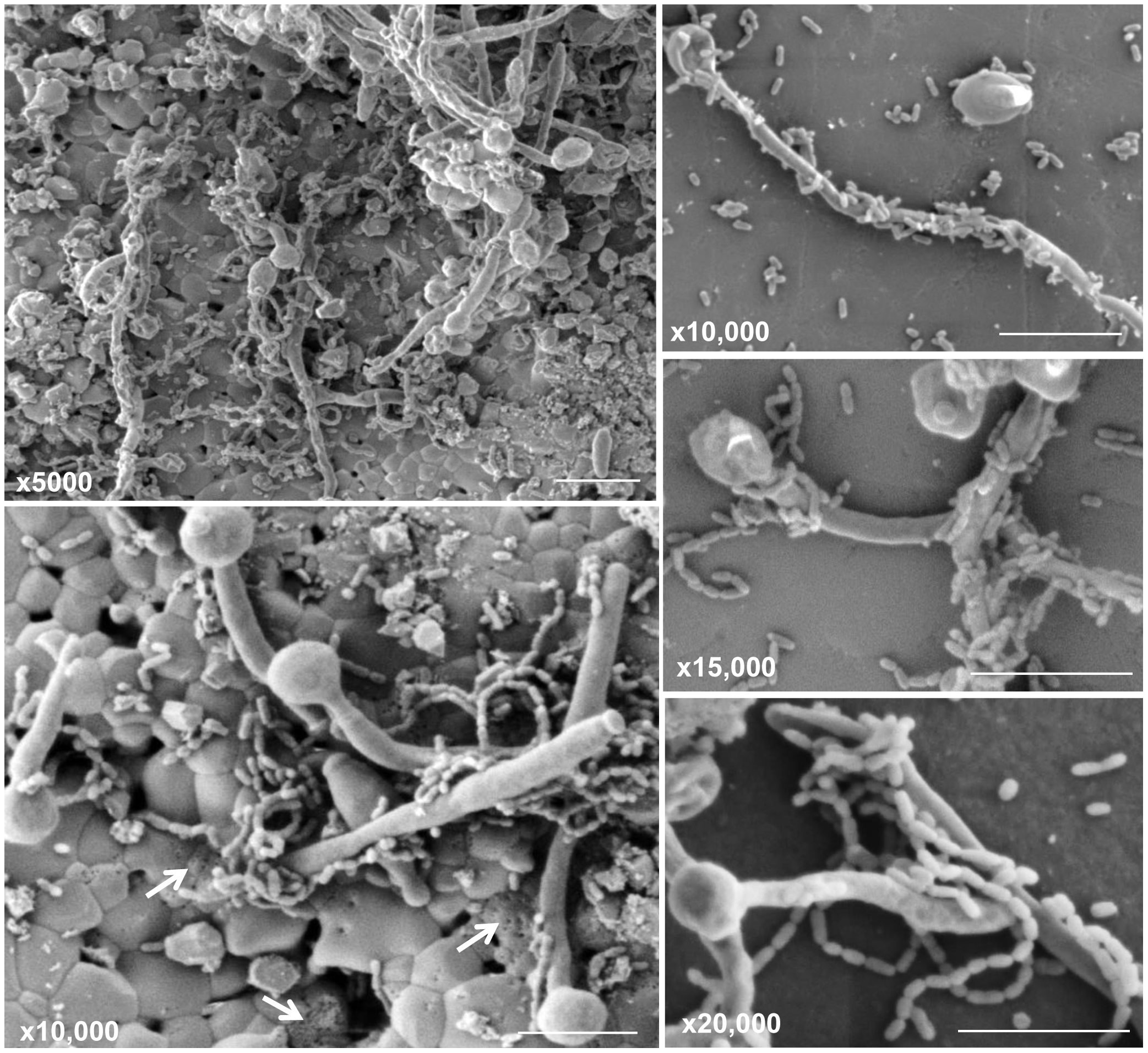 Scanning electron micrographs of mature mixed biofilms formed on discs of hydroxyapatite (a major component and essential ingredient of normal teeth), demonstrating the affinity of <i>S. mutans</i> to the hyphal elements of <i>C. albicans</i>.