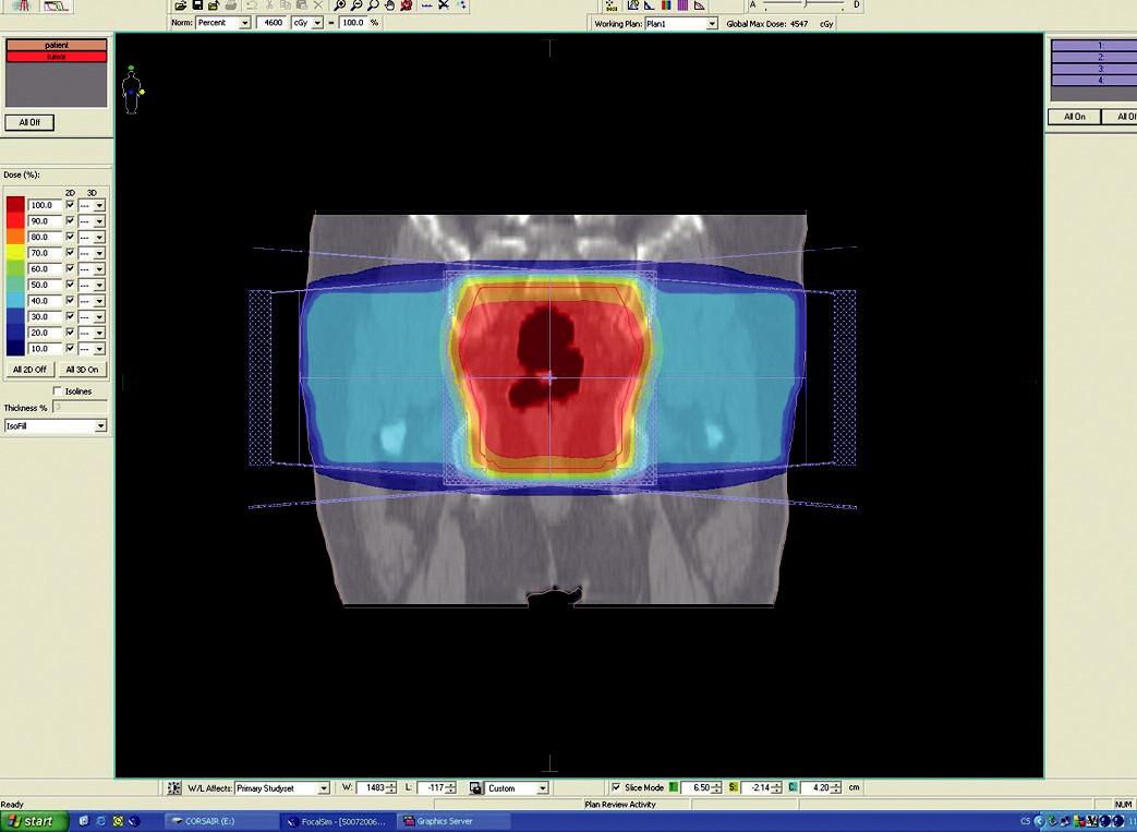 Plánovací CT vyšetření – předoperační ozáření karcinomu rekta cT3 NO MO – frontální rovina