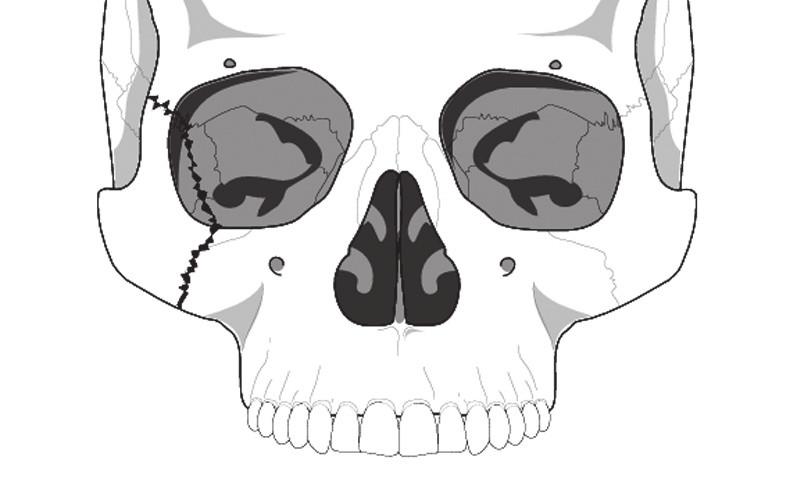 Schéma zlomeniny lícně-čelistního komplexu