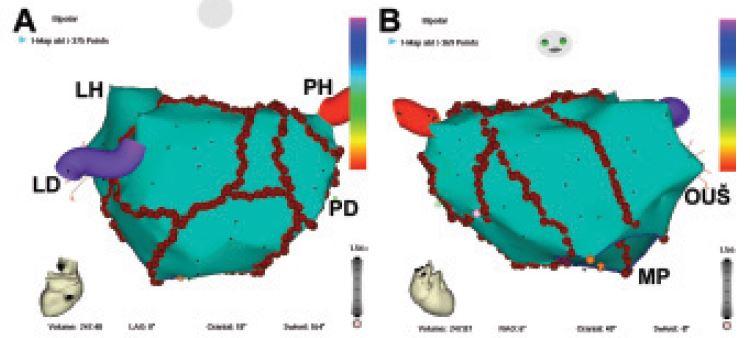 Ablační strategie u pacientů s chronickou fibrilací síní.