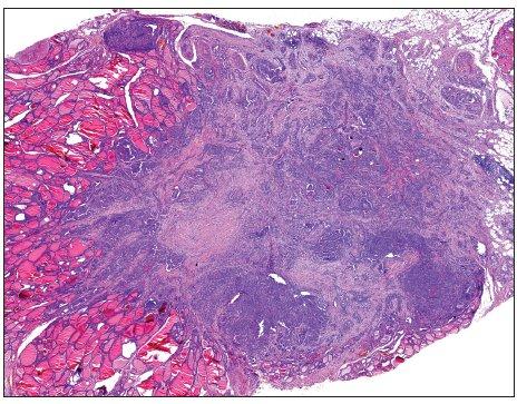 Papilární mikrokarcinom průměru 4 mm prorůstající skrze pouzdro štítné žlázy do okolního tuku (H&E, 40krát