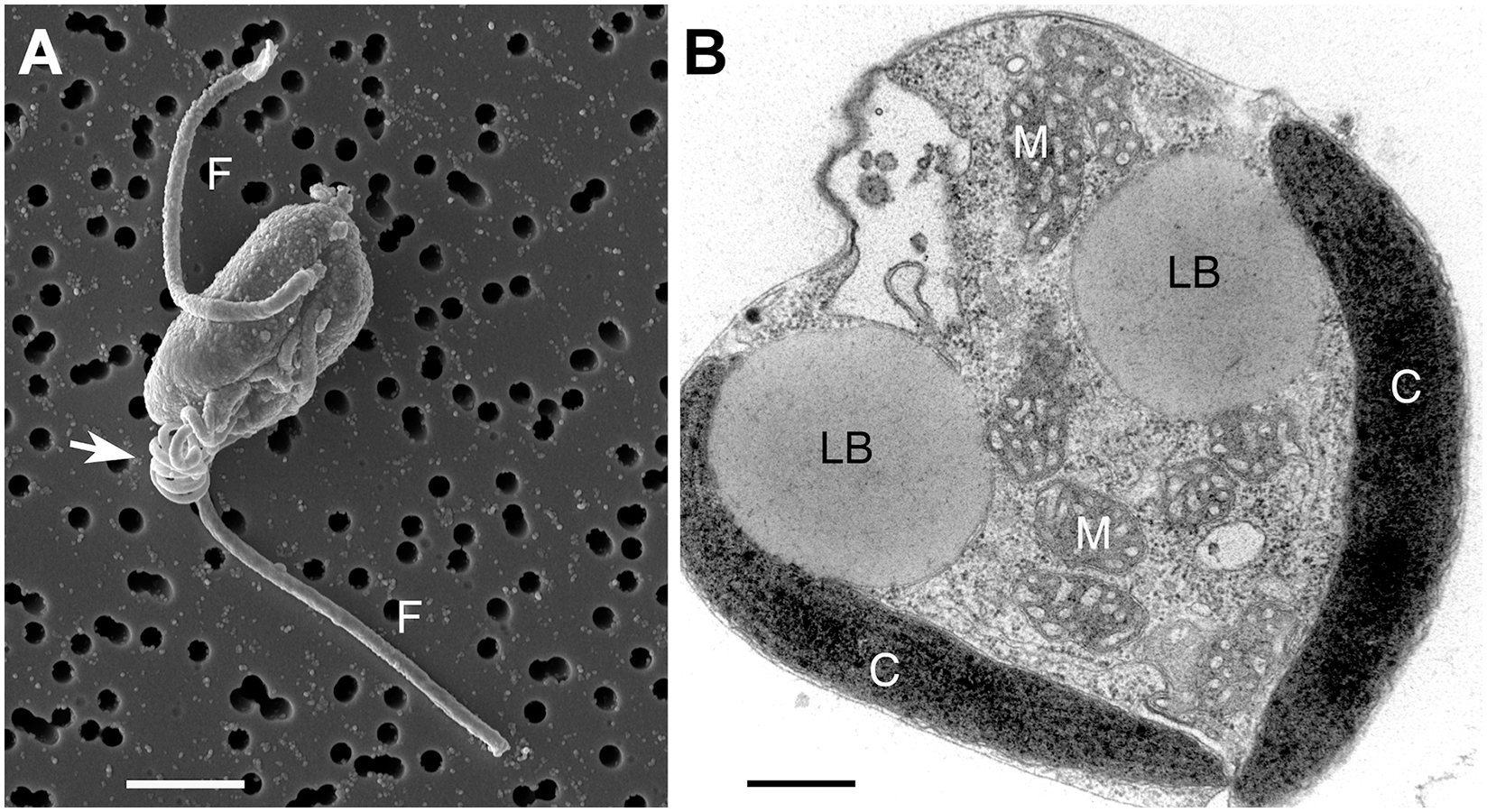 <i>Chrysochromulina tobin</i> cell structure.