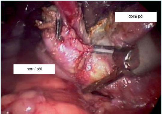 Resekce horního pólu směrem od dolního pólu pomocí ultrazvukových nůžek.