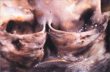 Lehká syfilitická choroba aortální chlopně. Komisura je rozšířená,cípy se nesetkávají, vzestupná aorta má perlově žluté ploché pláty.