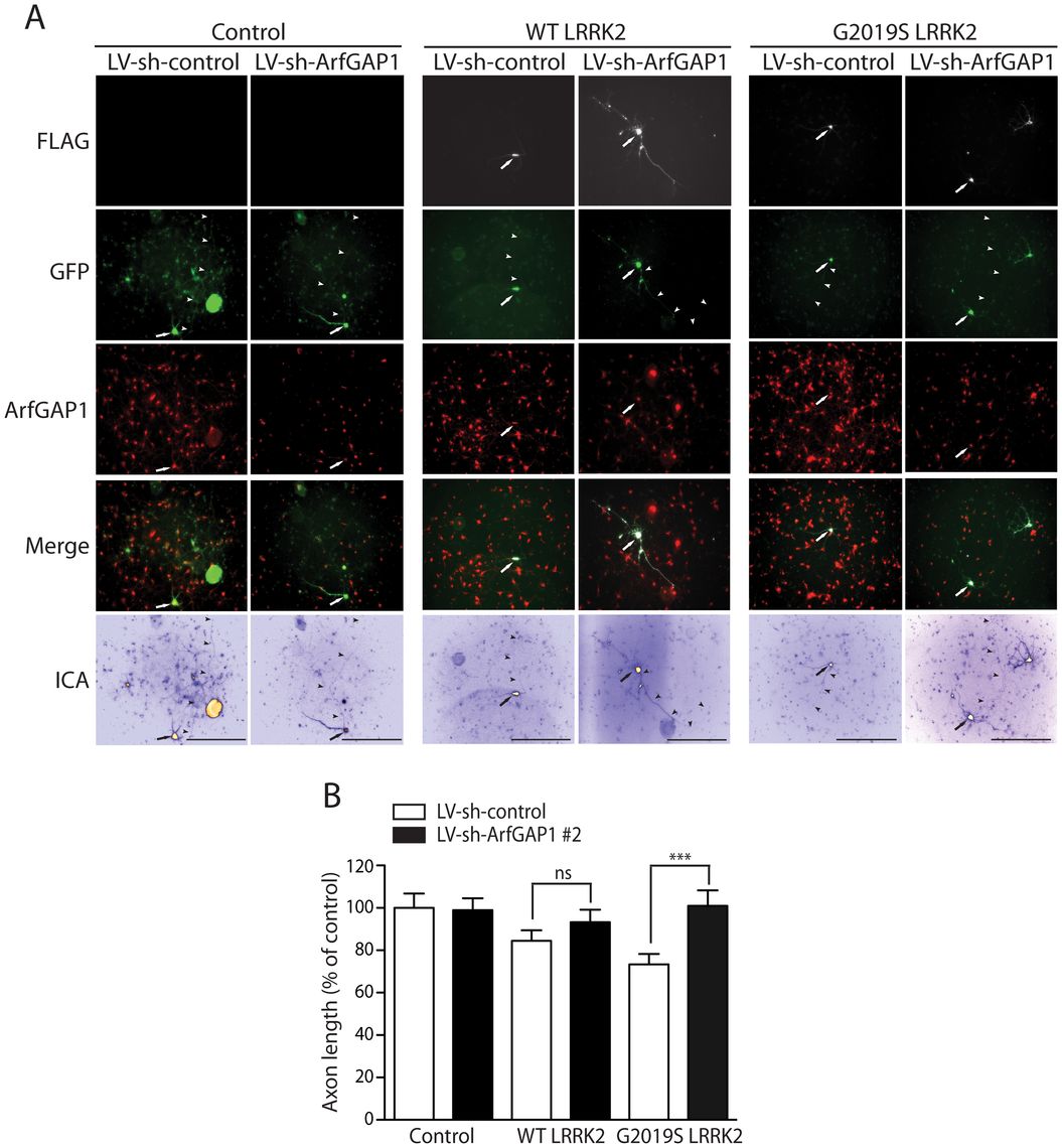 Silencing of ArfGAP1 expression rescues G2019S LRRK2-induced neurite shortening.