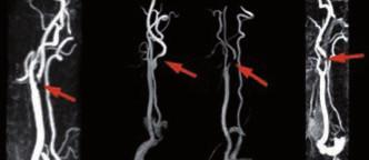 Kontrastní MR angiografie zobrazující stenotické postižení ACI.