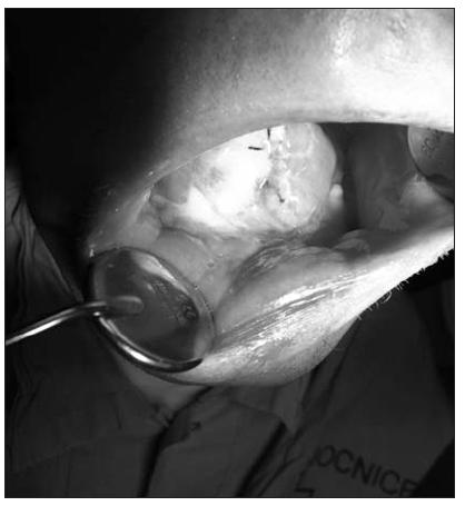 Sarkom jazyka (pohled na hojící se resekční plochu jazyka)