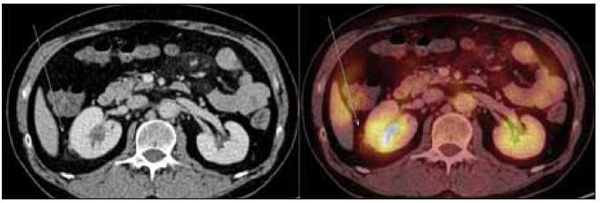 PET-CT zobrazení břicha. Zvýšení denzity perirenálního tuku, zneostření kontury pravé ledviny – diskrétní známky vznikajících fibrózních změn (označeno šipkou). Aktivní moč v dutém systému ledvin, perirenálně evidentní hypermetabolizmus glukózy nedetekujeme.