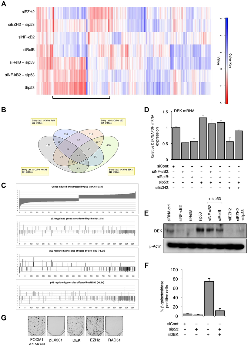 EZH2 is a critical effector of an antagonistic cross-talk between NF-κB and p53.