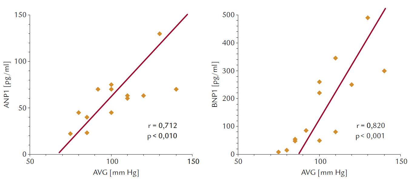 Korelácie medzi vrcholovým aortovým gradientom (AVG) a pokojovými koncentráciami ANP 1 a BNP 1.