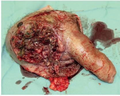 Peroperační snímek, excidovaný preparát Fig. 8. Peroperative foto, excised histology sample