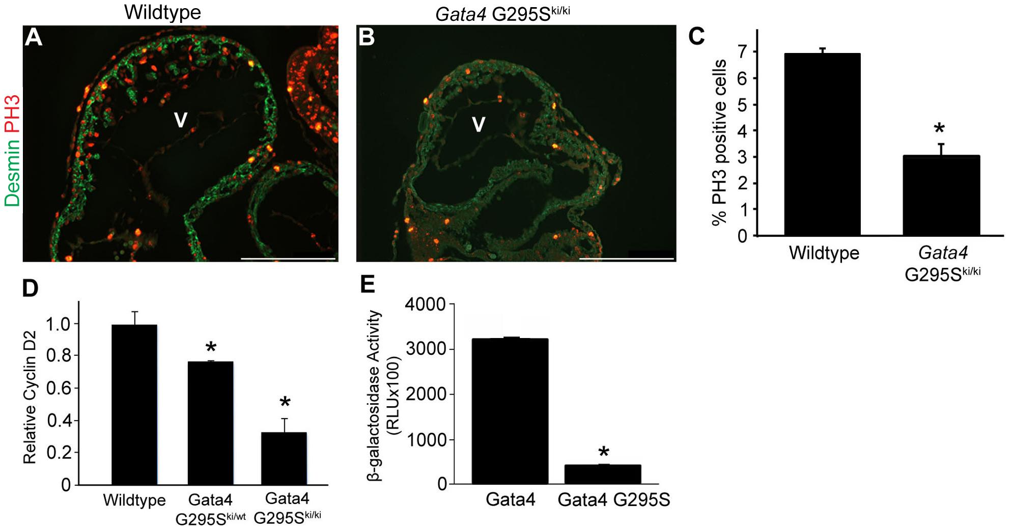 G295S mutation in <i>Gata4</i> results in cardiomyocyte proliferation defects.