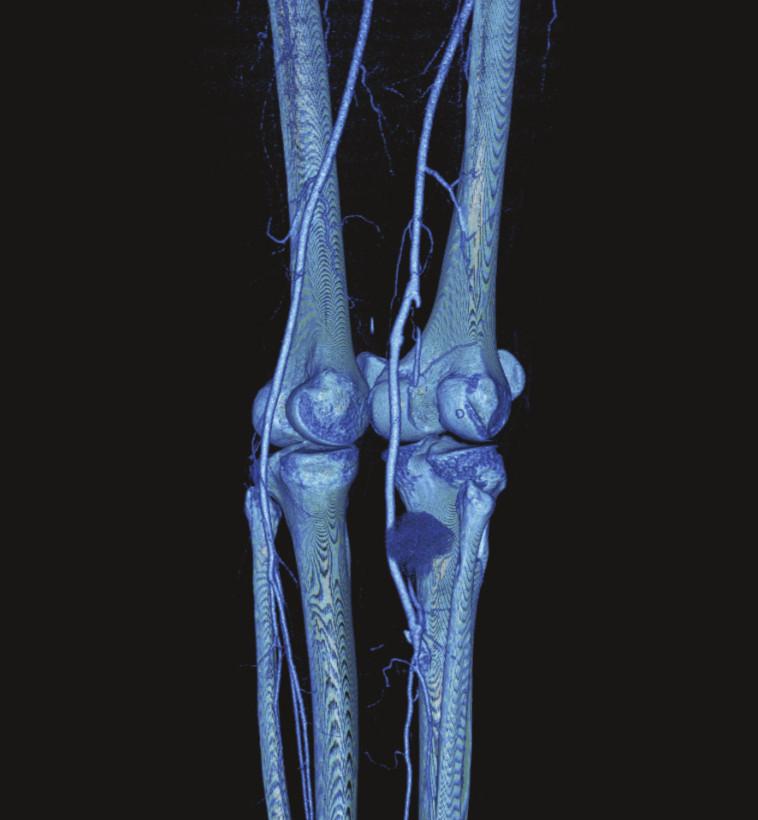 Obr. 3. CTA po rekonštrukčnom výkone vpravo, zachytená pseudoaneuryzma retrográdne plnená z reziduálnej časti a. poplitea  Fig. 3. CTA after the reconstruction on the right, a pseudoaneurysm with retrograde filling from the residual part of the popliteal artery is detected