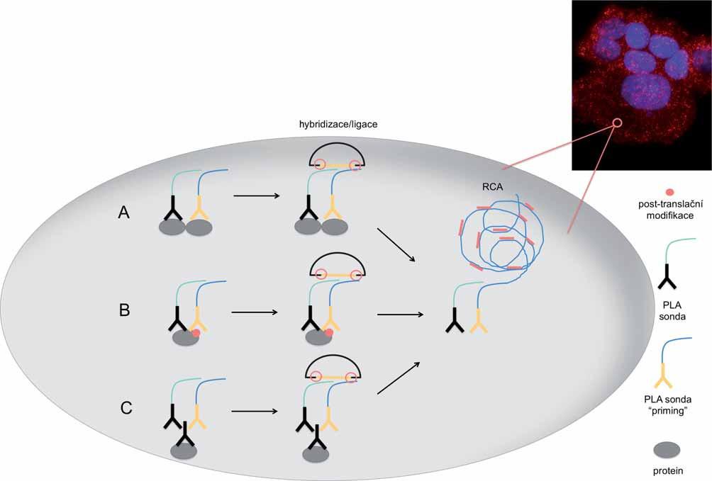 Schéma detekce dimerního proteinového komplexu, post-translační modifikace proteinu a samotného proteinu metodou PLA <em>in situ</em> s využitím amplifikace otáčivou kružnicí (RCA) za vzniku amplifikačního produktu.