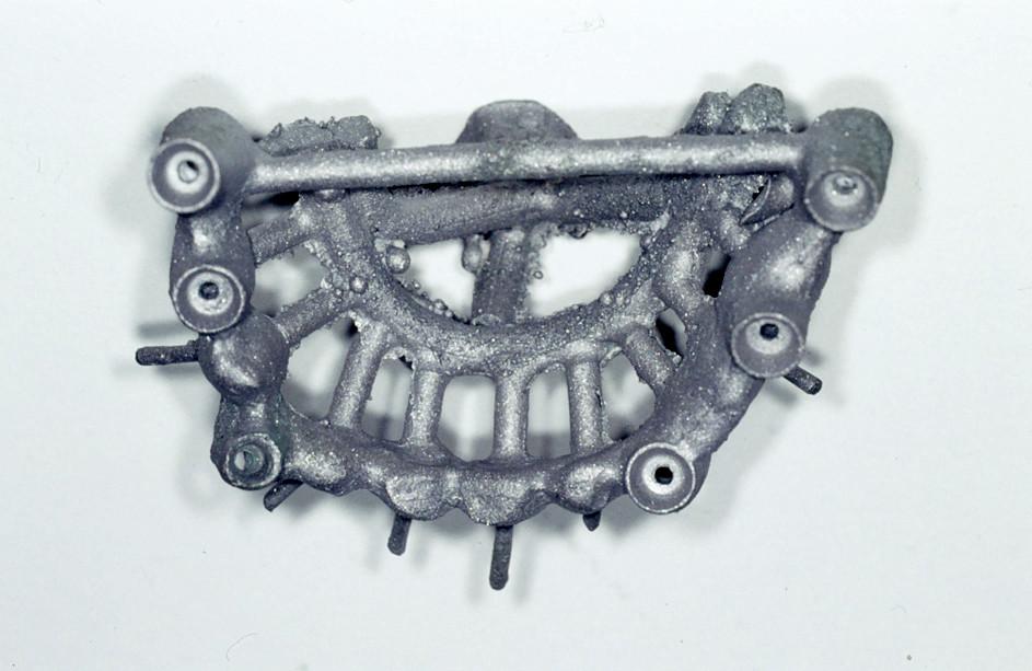 Fig. 8. Metal framework (Remanium, Bego)