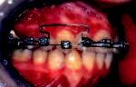 Obr. 5a. Intraorální pohled v průběhu léčby.