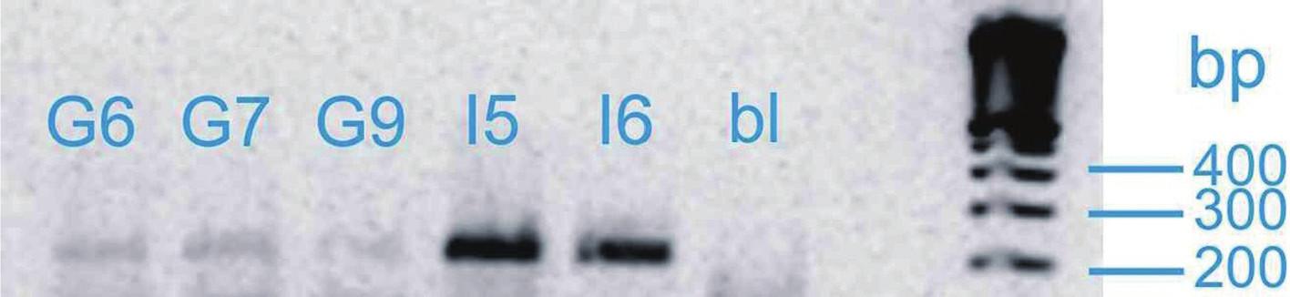 Vizualizace genu SHB Fig. 1. Visualization of SHB gene