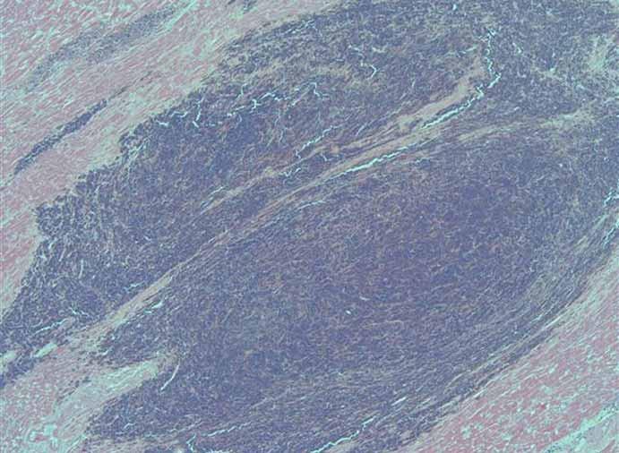 Histologický obraz metastázy malígneho melanómu v myokarde (25-násobné zväčšenie).