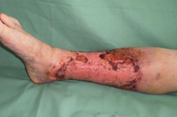 Pacient č. 3 − 15. den po operaci s použitím PRP – kompletně zhojeno Fig. 3: Patient No. 3 − 15 days after surgery with PRP – wound completely healed