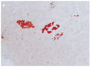 Obr. 3F Barvení olejovou červení buněk linie Ze002 kultivovaných deset dní v adipogenním médiu s pozitivním průkazem tukových vakuol v cytoplazmě