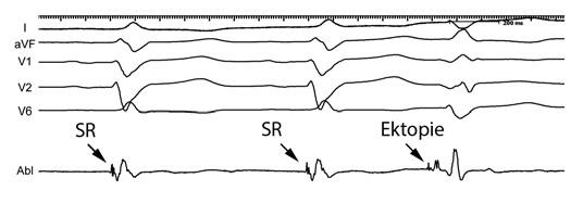 Záznamy z povrchového EKG (I, aVF, V1, V2, V6) a distálního bipólu mapovacího katétru (Abl d)
