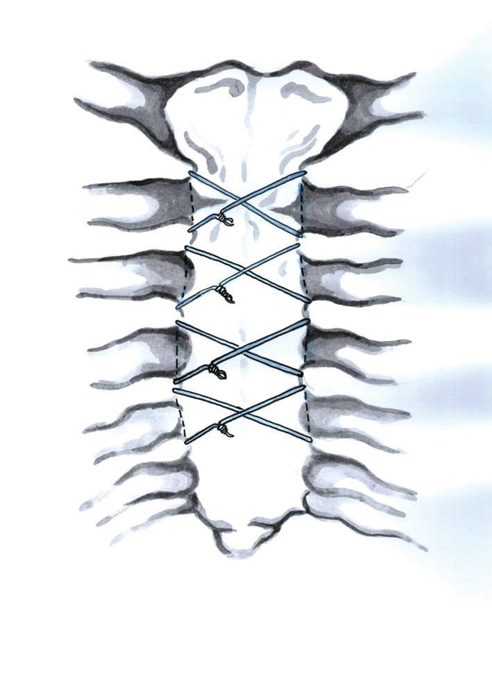 Perikostální drátěné osmičky (Kresba archiv autora) Fig. 6: Figure-eight pericostal wire closure