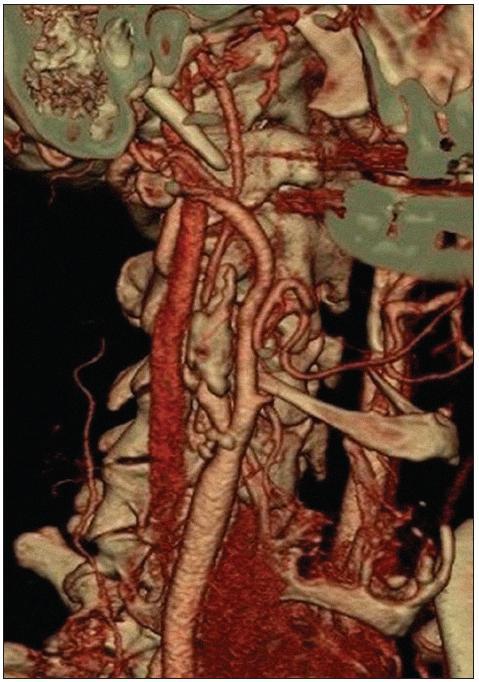 CT angiografie zobrazuje kritickou stenózu vnitřní krkavice na podkladě masivního nerovného plátu s chabým plněním tepny nad stenózou.