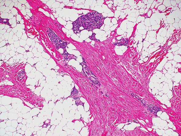 Ostrůvky meningoteliálních buněk uložených ve zralé pojivové tkáni