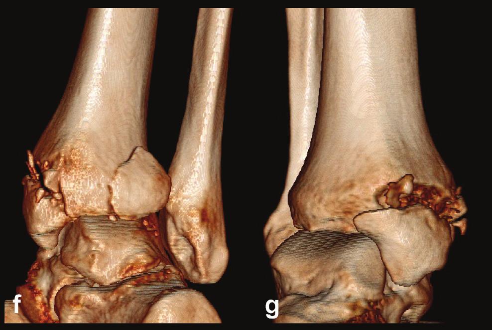 Odlomená zadní hrana tibie Typ 1 (posterolaterální) a, b, c – rtg snímky ukazující typickou Maisonneuveho zlomeninu fibuly, horizontální zlomeninu vnitřního kotníku a odlomení malého fragmentu zadní hrany tibie d – transverzální CT řez, e – sagitální CT řez, f – 3D CT rekonstrukce, dorzální pohled, g – 3D CT rekonstrukce, mediální pohled. Z rekonstrukcí je patrné, že zlomenina zadní hrany a vnitřního kotníku spolu nesouvisejí, odlomený zadní fragment tvoří pouze tuberculum post. nesoucí pouze malou dorzální část incisury tibie, mediální část zadní hrany je intaktní