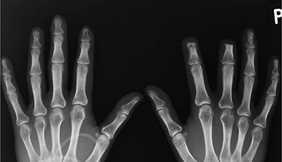 RTG snímek rukou. (prosinec 2010, autor snímku: prim. MUDr. J. Gatterová, Revmatologický ústav Praha) Redukce měkkých tkání konečků 2. a 3. prstu levé ruky. Resorpce skeletu distálního článku 2.,3. a 5. prstu levé ruky (lytické změny tuberositas unguicularis distálního článku prstu levé ruky, počínající destrukce distálního článku 5. prstu levé ruky) Stav po chirurgické amputaci distálního článku 2. a 3. prstu pravé ruky