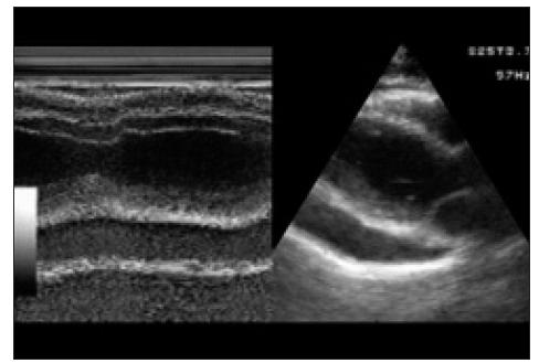 Echokardiografický nález u pacientky 1 před fenestrací perikardu, výpotek za zadní stěnou levé komory a před pravou komorou. Paresternální dlouhá osa, 1- a 2rozměrné zobrazení.