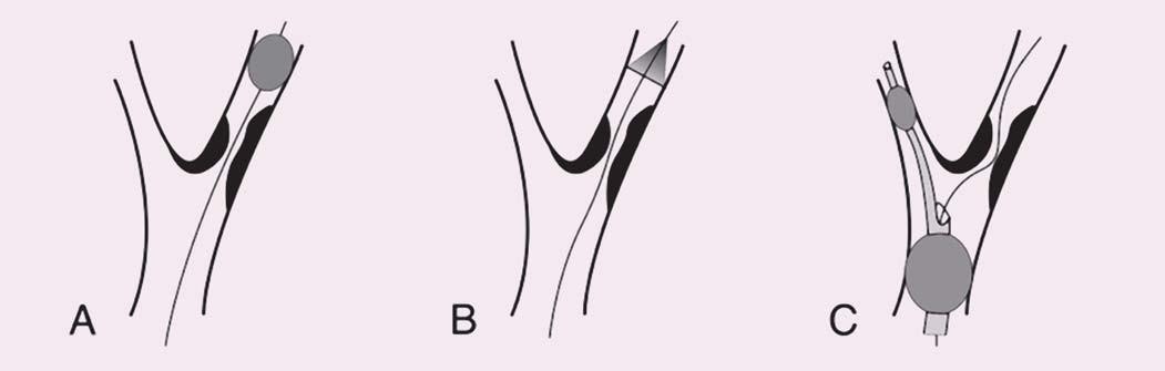 Schematické znázornění typů protektivních systémů. Vodicí drát prochází stenózou vnitřní karotické arterie ve všech panelech.  A) Distální okluze. B) Distální fi ltr. C) Proximální okluze (distální balon v arteria carotis externa a proximální balon v arteria carotis communis).