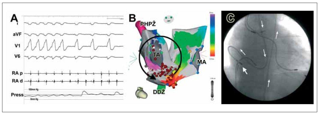 (A) EKG-záznam spolu s invazivním měřením tlaku u pacienta s tachykardií typu reentry po Mustardově korekci transpozice velkých cév. Při převodu arytmie v poměru 1 : 1 na komory dochází k výraznému poklesu systolického krevního tlaku na hodnoty okolo 50 mm Hg. (B) Aktivační mapa obou srdečních síní u stejného pacienta při typickém flutteru síní. (C) Vpravo je zobrazen průběh ablačního katétru (šipky), který je zaveden retrográdně přes aortu a systémovou pravou komoru do síně plicních žil.